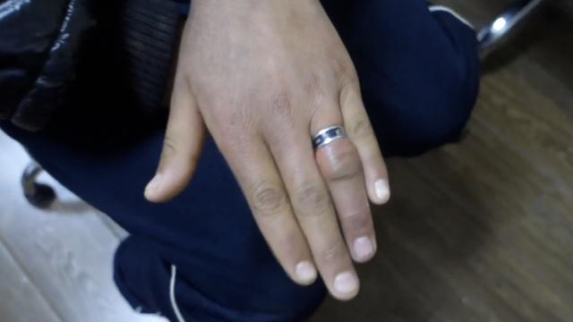 男孩捡来戒指戴,手指肿胀难取下
