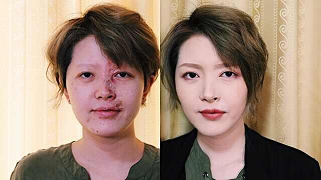 血管瘤美妆博主:化妆是我的武装