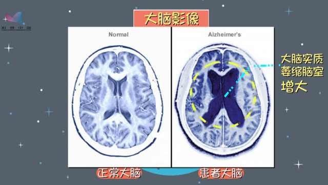 什么是老年痴呆?