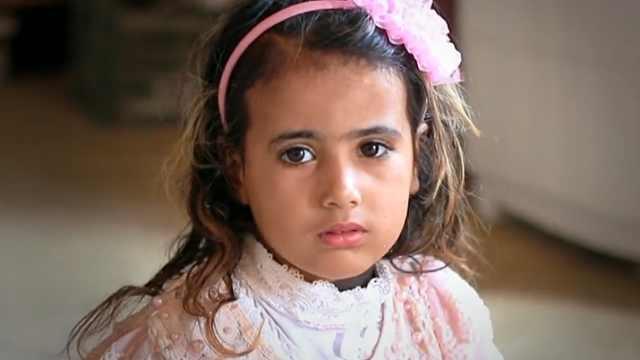 全身长毛的伊拉克女孩该去何处求医