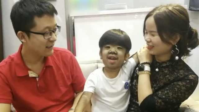 5岁男童全身长毛,父母教他勇敢自信