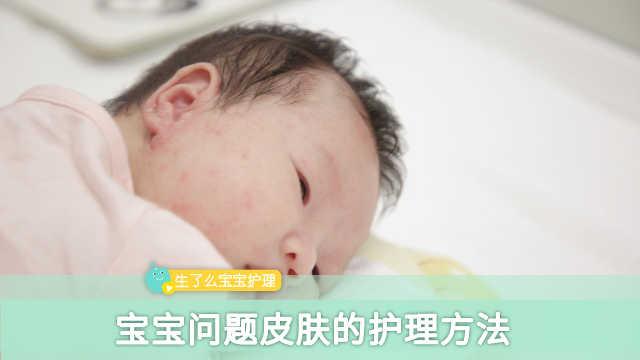 宝宝问题皮肤的护理三要点!