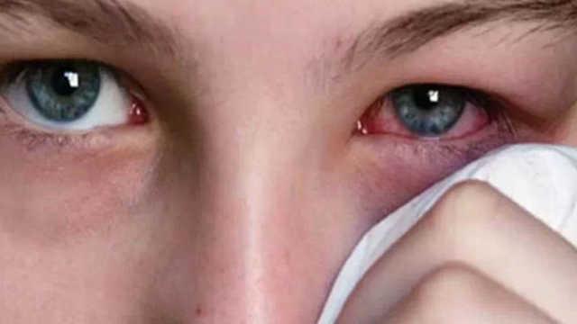 长期戴隐形眼镜睡觉,后果很严重