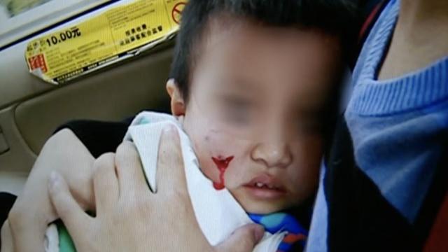 男童超市摔跤扎伤脸,家长索赔350万