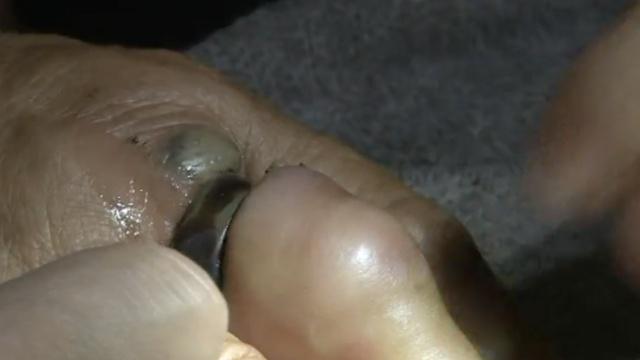 """戒指""""咬""""手指,大妈疼得哇哇叫"""