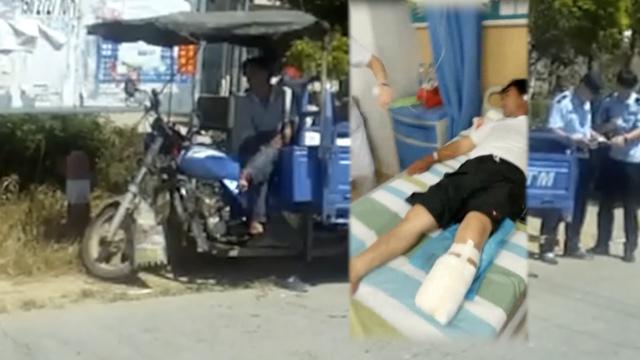 他右脚残疾左脚被撞截肢,司机逃逸