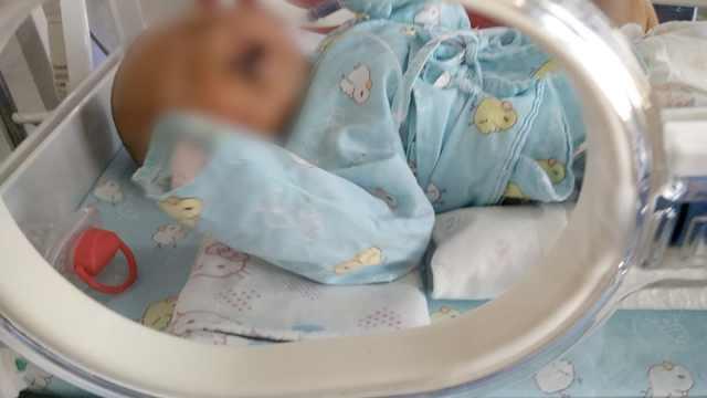兔唇男婴被弃垃圾堆,监控锁定父母