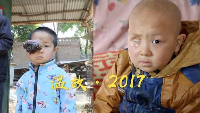 6岁男孩右眼摘除后长恶瘤,奇迹康复