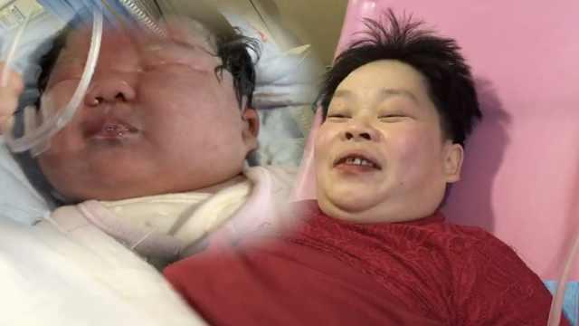 长沙202斤超重孕妇,顺产9斤重女婴