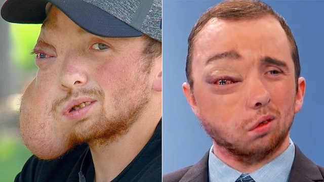 他脸上长7斤肿瘤,摘除后乐观多了