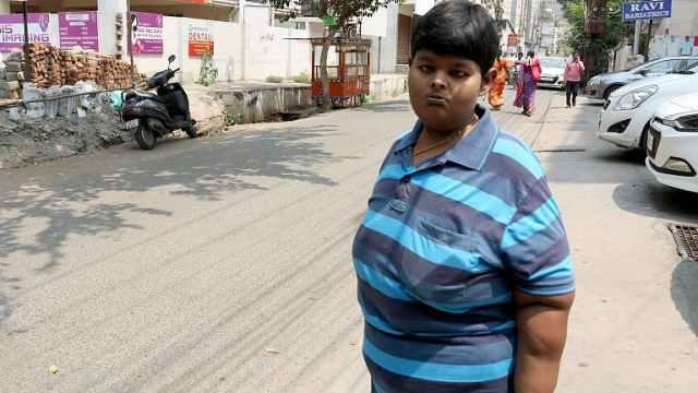患病少年手术后,14个月减140斤