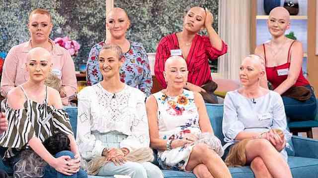 摘假发!8名脱发女性自信秀光头