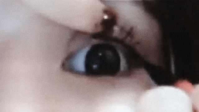 她化浓妆13年,眼睛里长出黑色结石