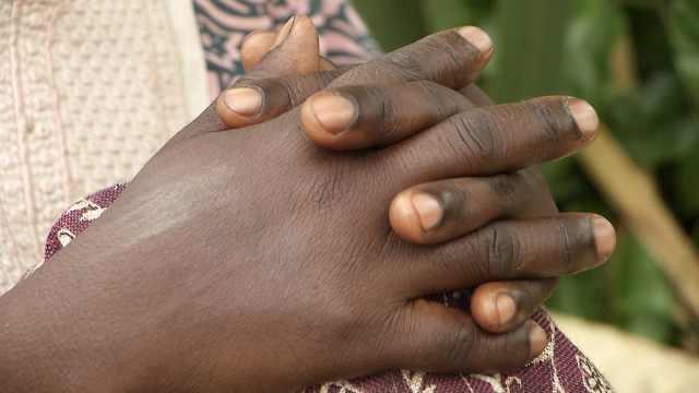 黑人女误诊艾滋,长期服药手掌变黄