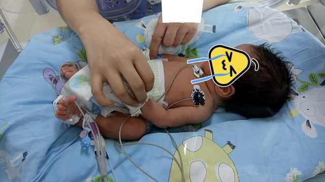 罕见!新生儿腹胀如球,竟是胃大穿孔