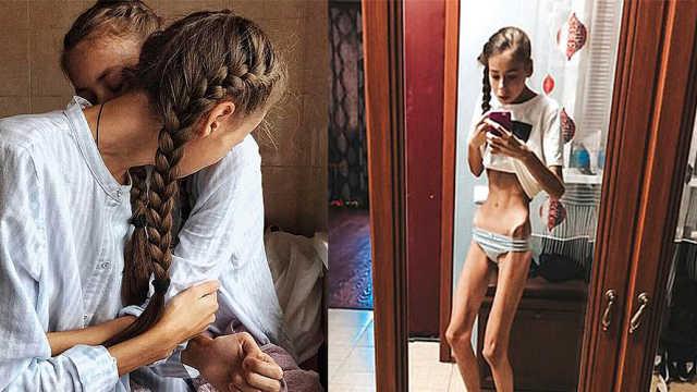 14岁双胞胎减肥患厌食症,瘦成骷髅