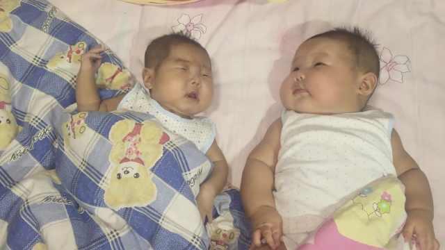 双胞胎体重相差1倍,妹患病3月开2刀
