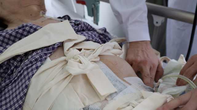 7旬大爷腹胀如孕,手术取出巨型肿瘤