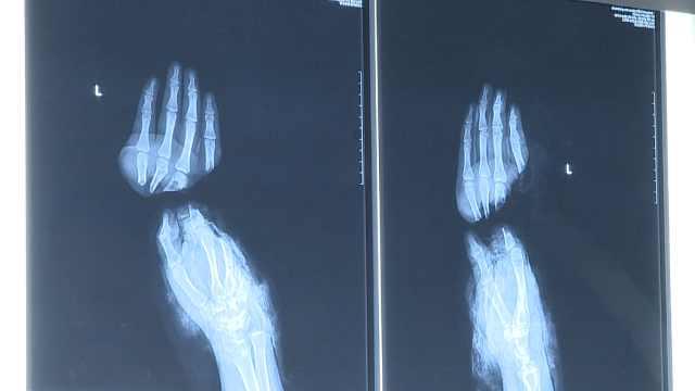 小伙左手掌被切断,医生缝合7小时