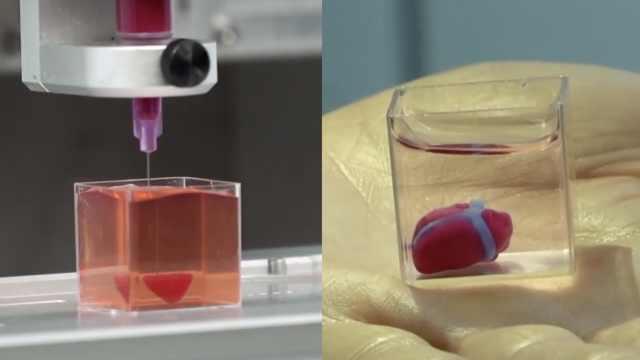 以色列完成首个人体组织3D打印心脏