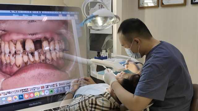 长期不爱刷牙?牙医:小心患老年痴呆