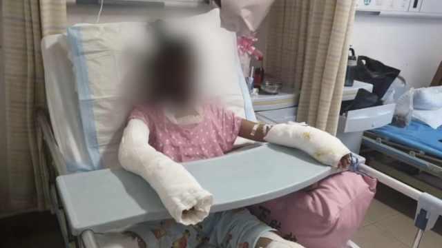女孩模仿短视频烧伤离世,姐:或起诉
