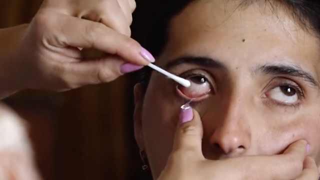 女子患怪病:流的不是眼泪是