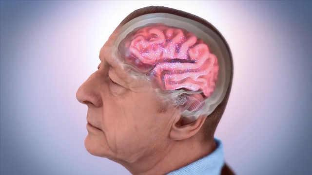 研究发现:走路缓慢与大脑早衰有关