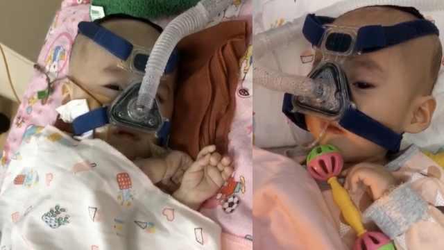 女婴患罕见病,救命药一针70万元