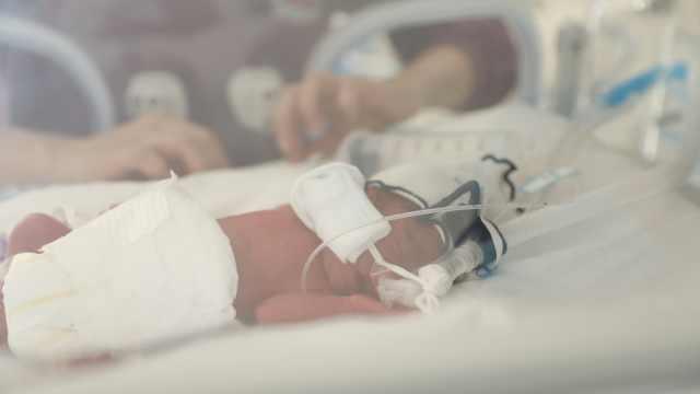 女子早产4胞胎最轻900克,2个患病