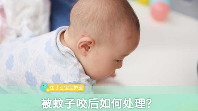 宝宝被蚊子咬后如何处理?