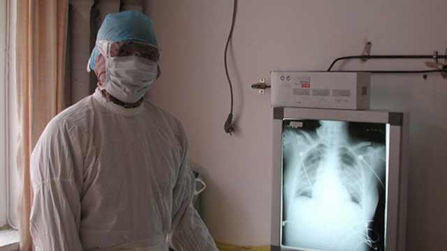 卫健委专家组成员疑似感染新型肺炎