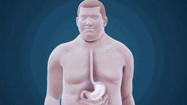 最简单直接的减肥法,生吞气囊!你敢尝试吗?