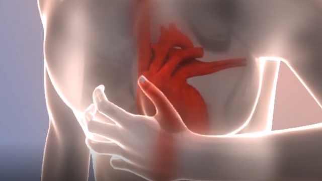 第1节:心血管病常见的症状——心悸