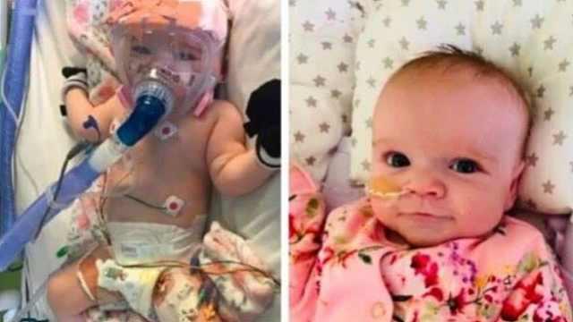 英国宝宝2个月大做开胸手术,6个月大战胜新冠病毒