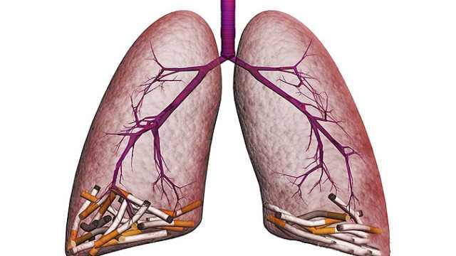 第7节:支气管及肺部疾病引发咳嗽的诊断要点