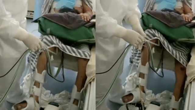 首例新冠肺移植患者可踏康复脚踏车自主锻炼,曾上62天ECMO