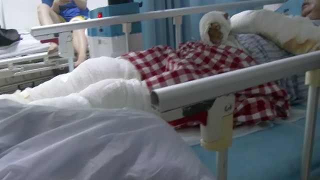 广东一女子家中被雷击倒,四肢重度烧伤
