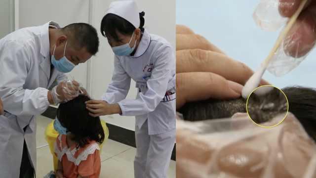 女童洗澡发现头顶长个小球,细看竟是蜱虫钻入