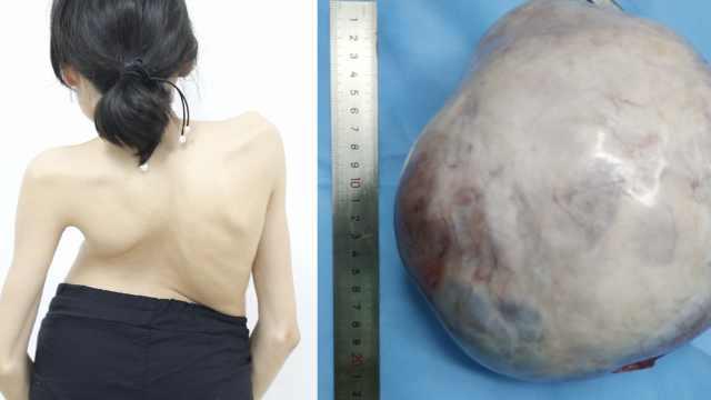 23岁女子体重不到50斤,长20公分大肿瘤占满腹盆