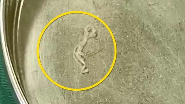 男子脑中取出12厘米寄生虫:17年前就出现不适症状