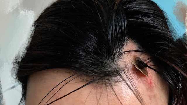 女孩做面部填脂术后皮肤溃烂,美容机构:可补偿眼部手术