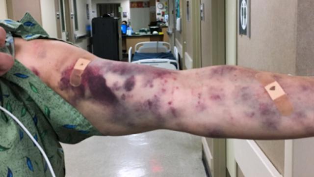 一男子遭虫咬,手臂竟变成这样