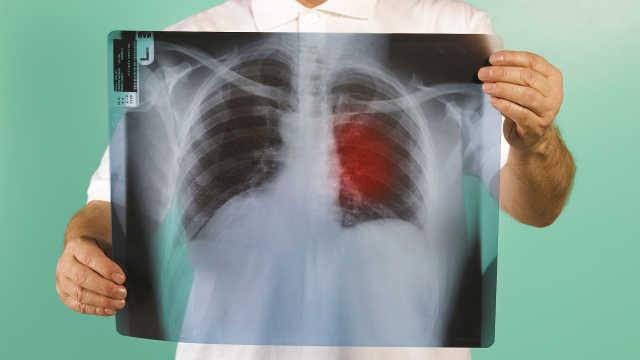 一张片子能诊断肺癌吗?